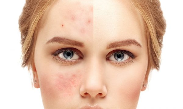 Is combination skin only a myth? Discover important facts about your complexion